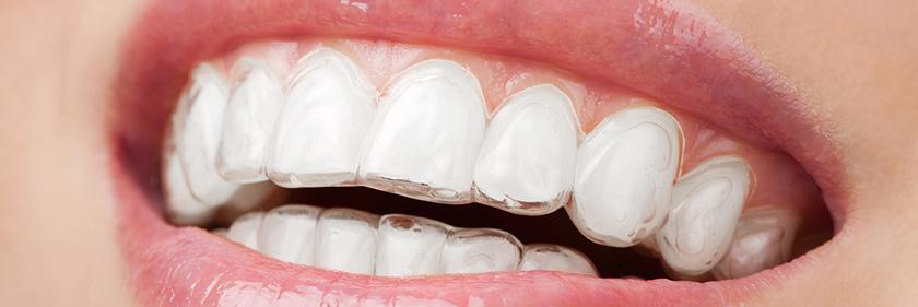 Invisalign Dentistry Fonthill